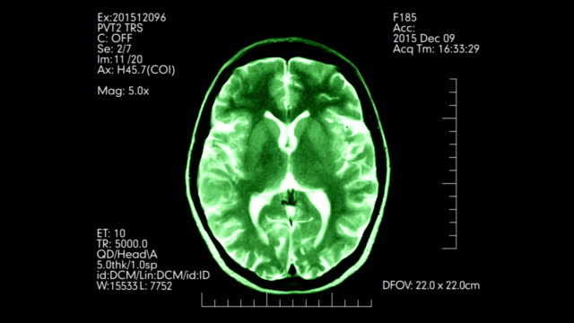 Green top view mri brain scan display loopable animation video