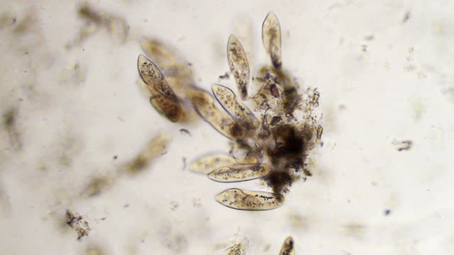 Groupe of Paramecium Caudatum - Stock video