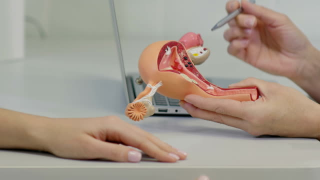 gynecologist doctor consulting patient using uterus anatomy model - animale femmina video stock e b–roll