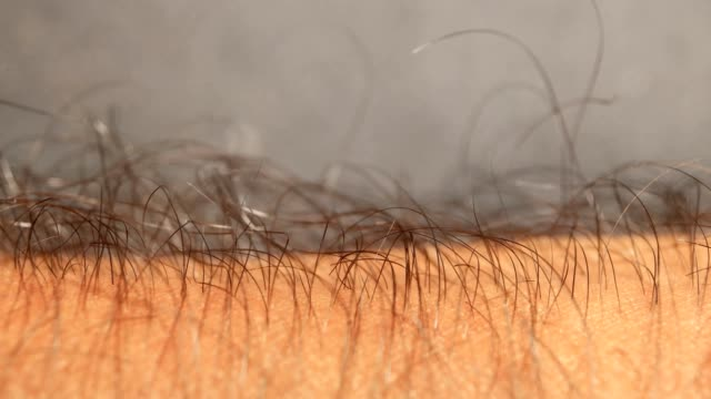 hairy skin - torace umano video stock e b–roll