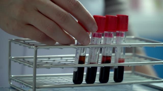 Hand Laboratory test blood