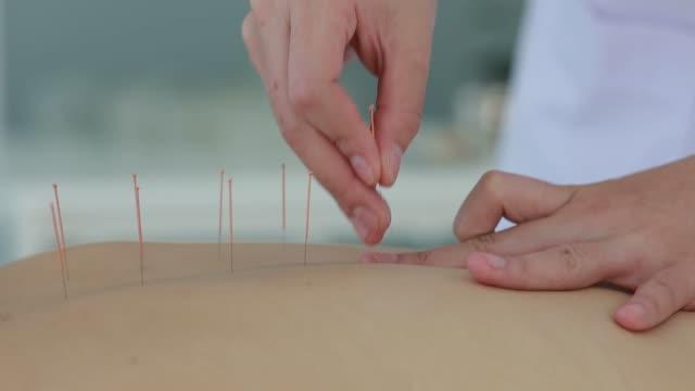 hand av läkare som utför akupunktur terapi. asiatisk kvinna genomgår akupunktur behandling med en linje av fina nålar in i hennes ansikte huden i klinik sjukhus - acupuncture bildbanksvideor och videomaterial från bakom kulisserna