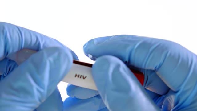 파란 장갑에 손을 대 고, 실제 혈액으로 튜브를 잡아. - aids 스톡 비디오 및 b-롤 화면