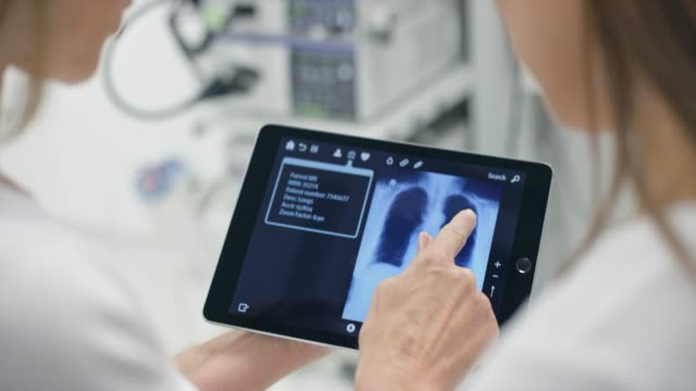 vídeos de stock e filmes b-roll de hands of female doctor explaining the lung scan on the tablet to her patient - pulmão humano