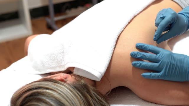 händerna på sjukgymnast gör en torr klingande - acupuncture bildbanksvideor och videomaterial från bakom kulisserna