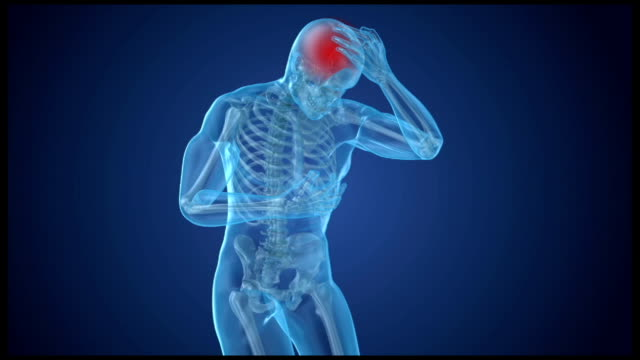 vídeos de stock e filmes b-roll de head pain attack, man suffering from brain pain. 3d animation - tumor cerebral