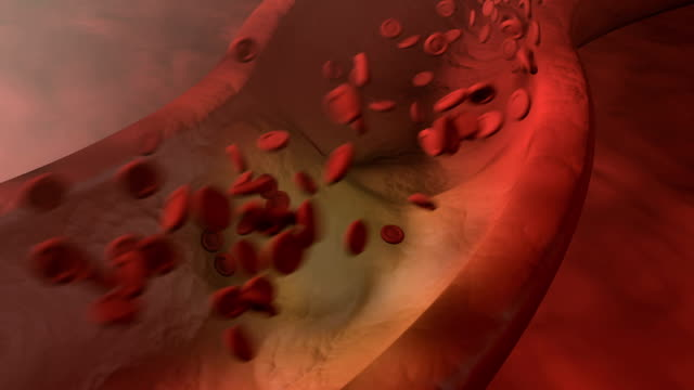 Heart Attack Heart Attack- A artery wall with cholesterol build up and red blood cells flowing through the artery. heart internal organ stock videos & royalty-free footage