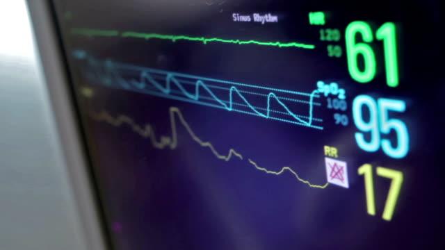 vídeos de stock e filmes b-roll de batimento cardíaco monitor de ecrã ou a frequência cardíaca em doentes idosos - coração fraco
