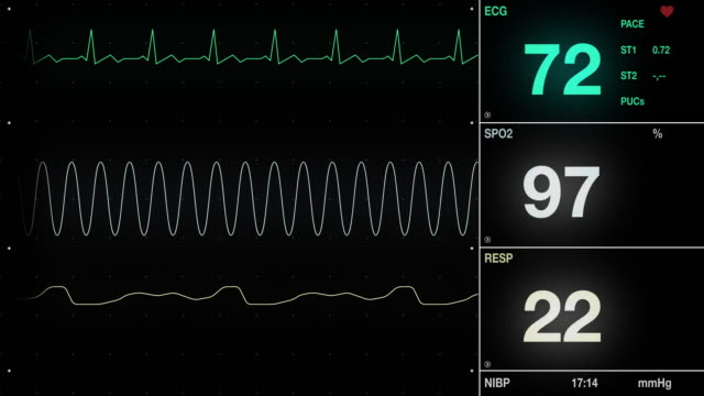 Heart ECG Monitor Heart ECG Monitor with pulse rate. pulse trace stock videos & royalty-free footage