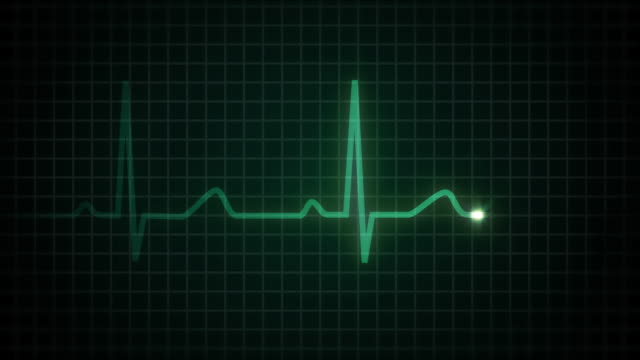Heart Flatline HD (With Audio)  pulse trace stock videos & royalty-free footage