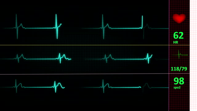 ECG/EKG heart line (LOOP) ECG/EKG  Monitor with heart pulse, heart pressure and oxygen supply performance. pulse trace stock videos & royalty-free footage