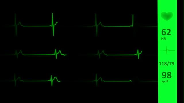 ecg/ekg herzlinie | vital signs - medizinisches untersuchungsgerät stock-videos und b-roll-filmmaterial