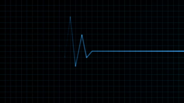 Heart Monitor Animation Seamless looping heart monitor animation human heart stock videos & royalty-free footage