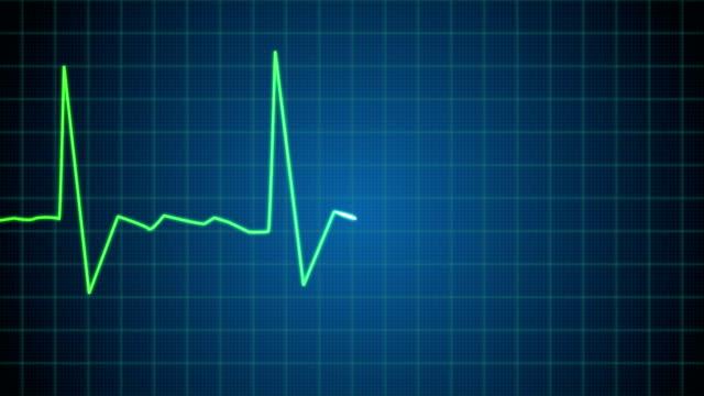 EKG heart monitor goes flatline video