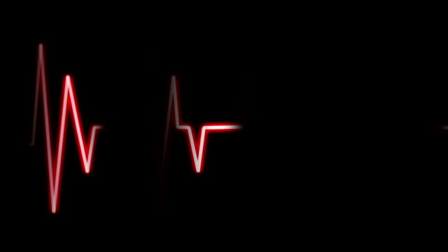 EKG Heart Monitor (Loopable) EKG Waveform Monitor pulse trace stock videos & royalty-free footage