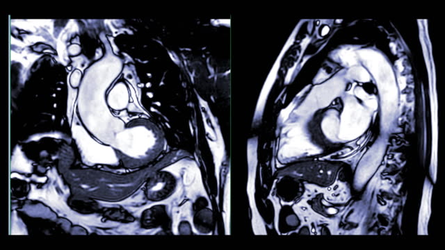 MRI heart or Cardiac MRI or magnetic resonance imaging  of heart compare RVOT and LVOT for diagnosis heart disease.