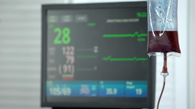 vídeos y material grabado en eventos de stock de frecuencia cardíaca cayendo a cero en el monitor ecg en la sala de reanimación, transfusión de sangre - recién nacido 0 1 mes