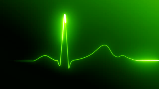 Heart Rate Monitor Heart Rate Monitor pulse trace stock videos & royalty-free footage