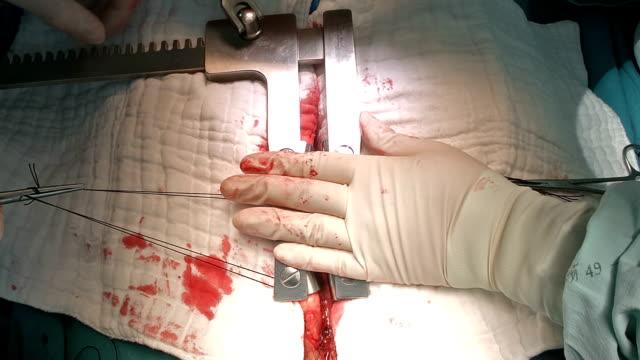 Heart Surgeon Apply Spreader video