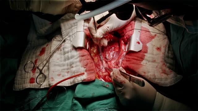 vídeos de stock, filmes e b-roll de cirurgião cardiovascular cannulate aorta ascendente prepare-se para o coração de passar - marcapasso cirurgia cardíaca