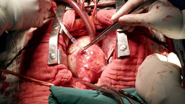 Heart surgeon give Cardioplegia with ice slush video