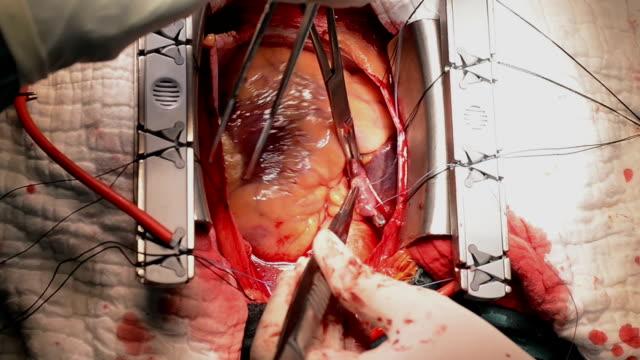 heart surgeon suture right atrium - sütür eklem stok videoları ve detay görüntü çekimi