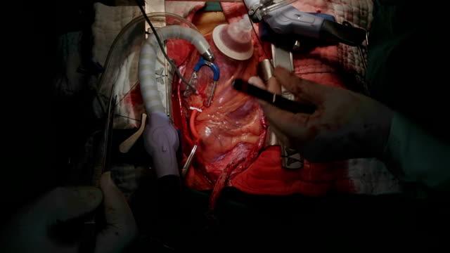 vídeos de stock, filmes e b-roll de cirurgião cardiovascular usar sonda sizer medida artéria coronária de diâmetro - marcapasso cirurgia cardíaca