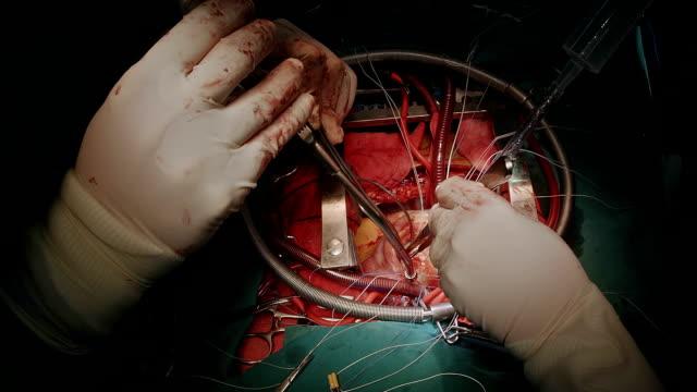 Heart surgeon use saline test after mitral valve repair video