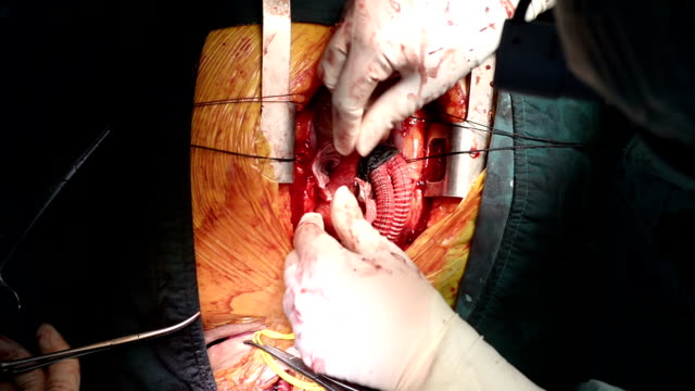 Heart surgeon Wrap Ascending Aorta video