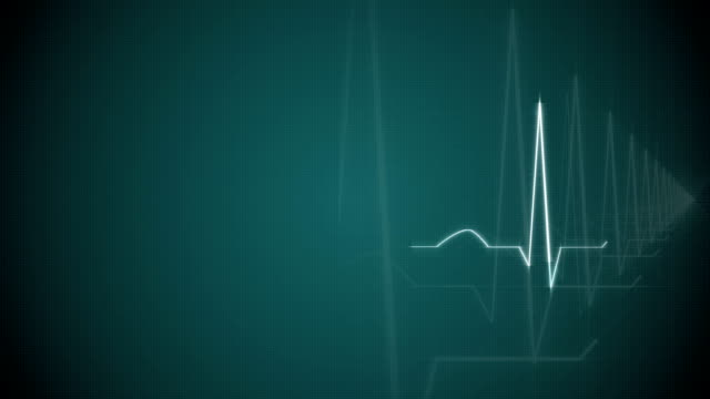 HeartBeat Cardiogram on Green Background. video