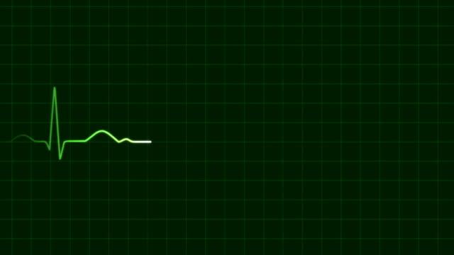 Heartbeat ECG (HD, 5s, loop) video