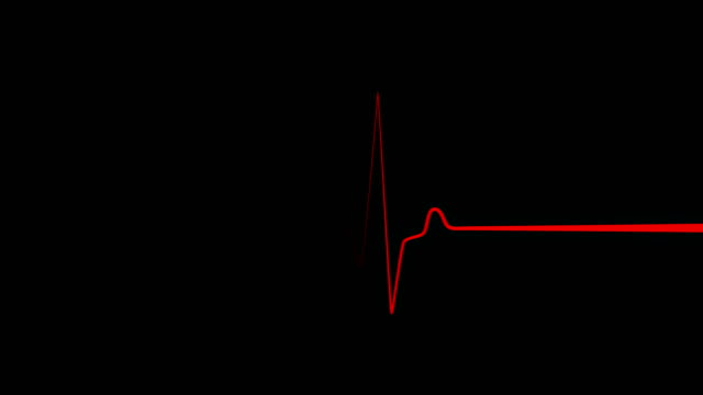 Heartbeat flatline, cardiac impulse sequence on the screen Heartbeat flatline on EKG or ECG screen in close-up. Heart rate electrocardiogram graph on black background. Heart rhythm, red line with a long windup. defibrillator stock videos & royalty-free footage