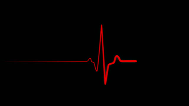 Heartbeat flatline. Red heartbeat line on EKG screen Heartbeat flatline. Seamlessly looping animation. Healthy heartbeat then straight line. Pulse trace red line on black background. More color options in my portfolio. defibrillator stock videos & royalty-free footage