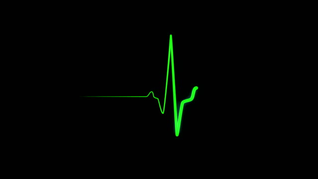 Heartbeat monitor EKG green line. Cardiac arrest on medical monitor, heart stops beating. The human heart beats twice then straight line on a screen. Heartbeat EKG ECG line. Seamlessly loop footage on black background defibrillator stock videos & royalty-free footage