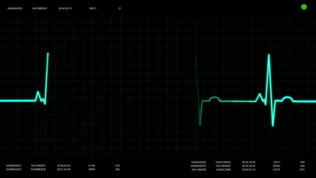 ekg heartbeat monitor, fast - puls bildbanksvideor och videomaterial från bakom kulisserna