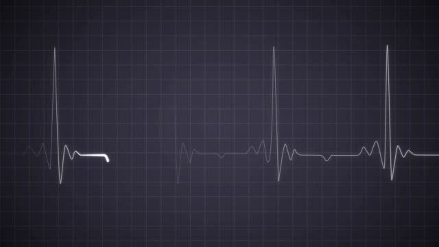 EKG Heartbeat on Monitor Recording of Pulse Cardiac Arrest. Heart Rhythm White Realistic Neon Heartbeat on Black Isolated Background. Neon Light Heart Rate on Display Screen human heart stock videos & royalty-free footage