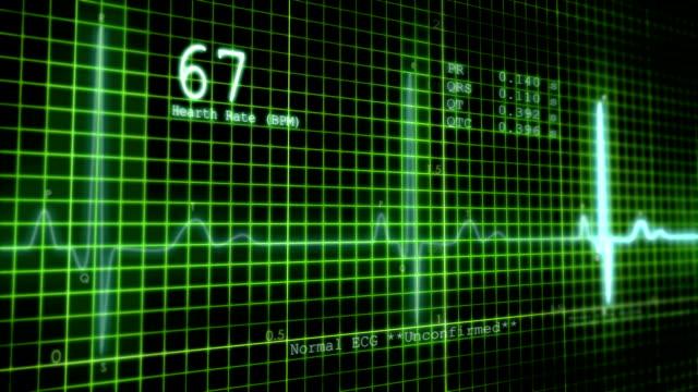 ECG Hearth Monitor video