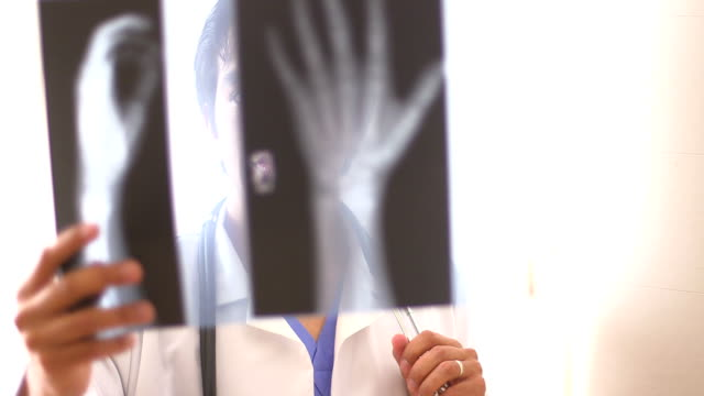 Hispanic doctor reviewing hand x-rays video