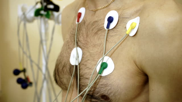 Holter monitor device on patient's chest to monitoring of an electrocardiogram. Electrocardiograph. Caucasian men is on the procedure of electrocardiogram to diagnose heart disease. HD electrode stock videos & royalty-free footage
