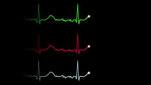 Hospital EKG Traces video