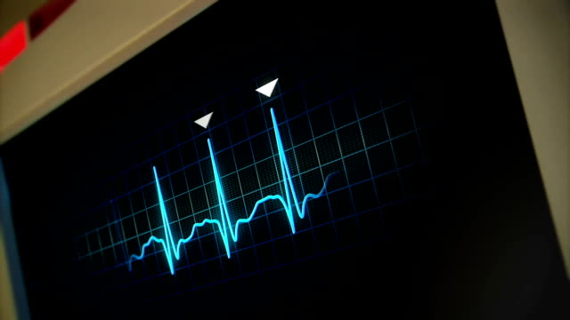 Hospital Monitor video