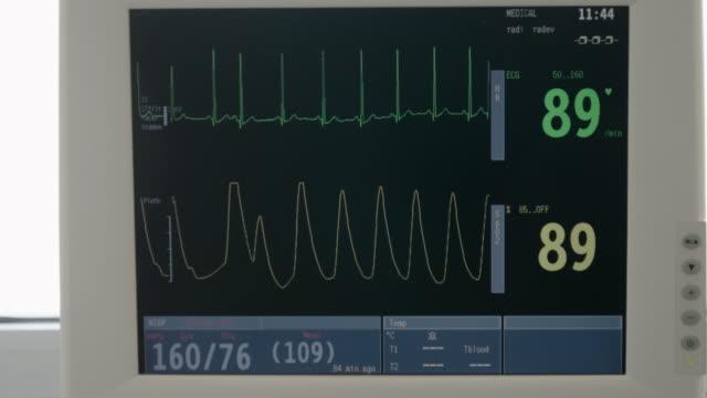 Hospitals. CU, ESG monitor. Display of Vital signs monitor show waveform ECG. Emergency room.