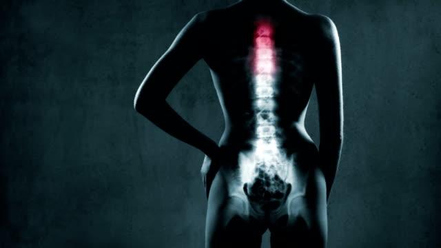 Human backbone in x-ray