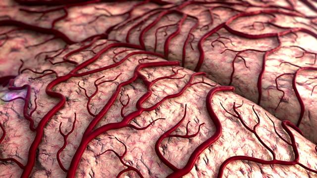 vídeos de stock e filmes b-roll de human brain model - enfarte
