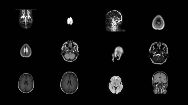 Human Brain MRI Scan Collage of brain and skull scans from several angles. skull stock videos & royalty-free footage