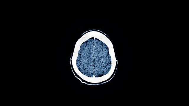 Human Brain MRI Scan video