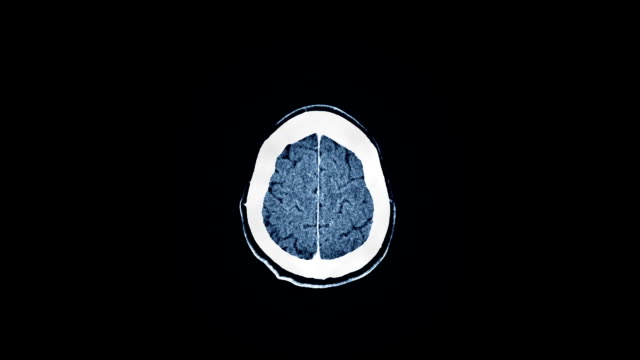 Human Brain MRI Scan Human brain MRI scan. Top view. Smooth motion, blue tint. magnet stock videos & royalty-free footage