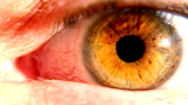 人間の目に dilating 有名ボール - まぶた点の映像素材/bロール