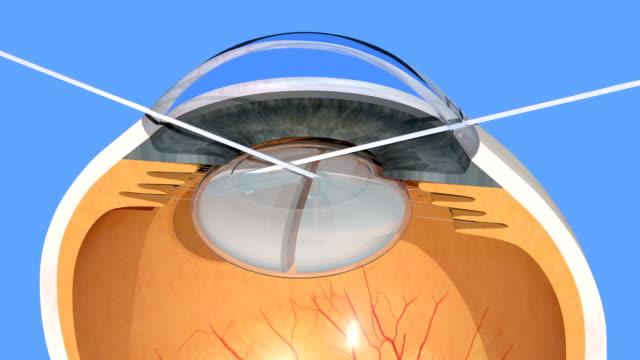 Human eye, cataract surgery, manual cloudy lens fragmentation, 3d render, 4K cg animation of bimanual lens fragmentation on blue background implant stock videos & royalty-free footage