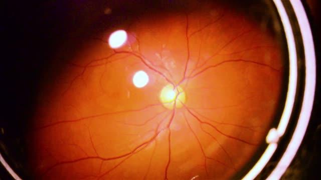 vidéos et rushes de contractantes d'iris de l'oeil humain - rétine